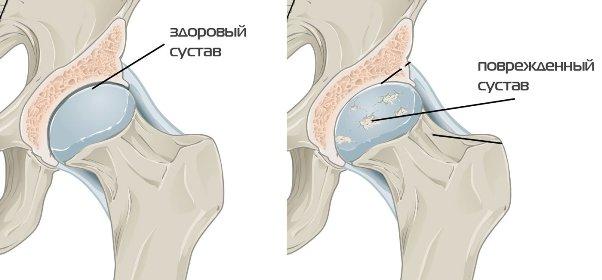 Повреждённый сустав